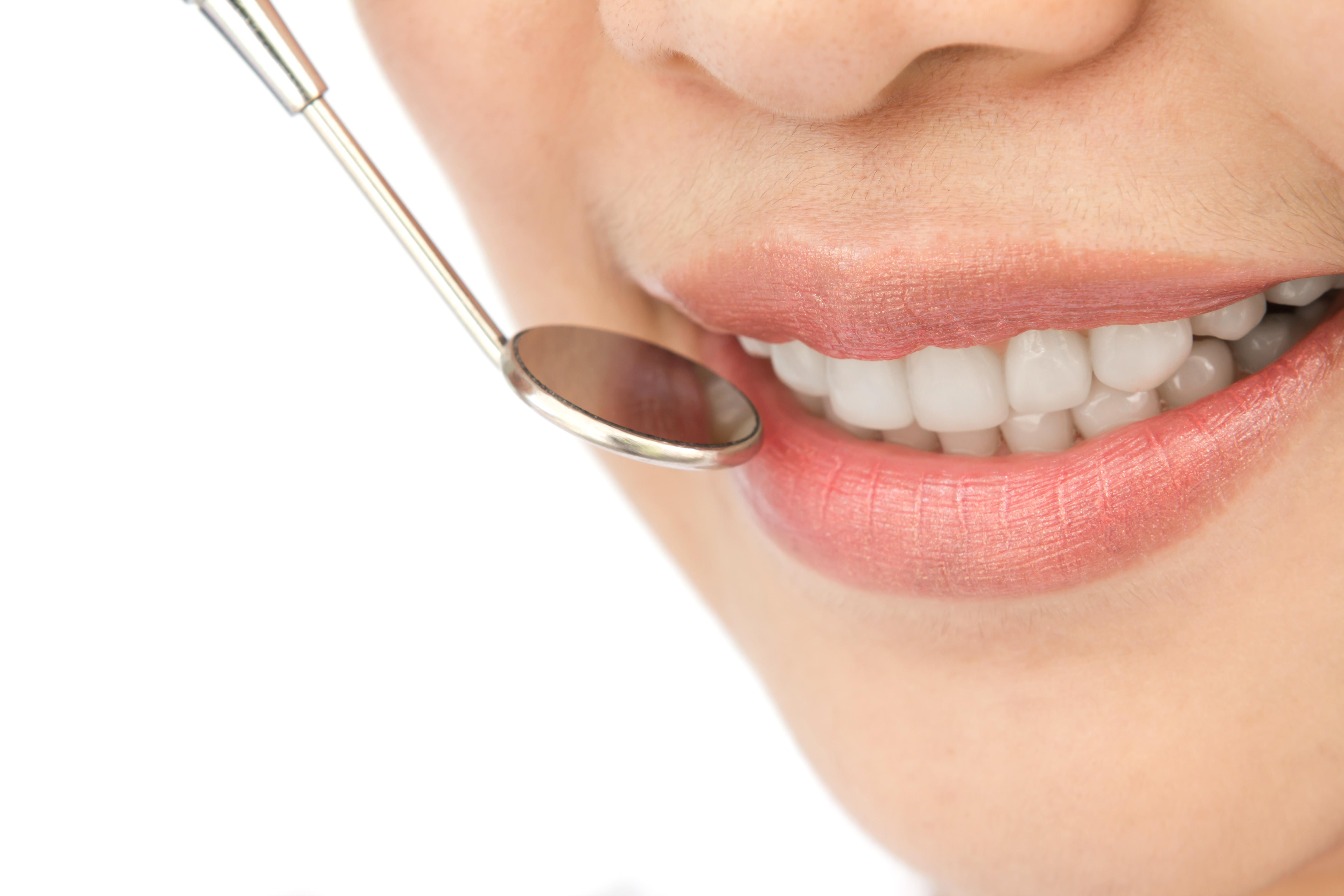 Wybielanie zębów - co warto widzieć?