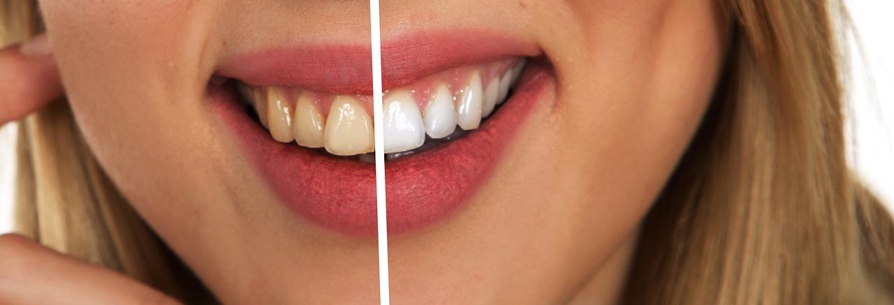 Piaskowanie zębów - czy jest to skuteczny zabieg?
